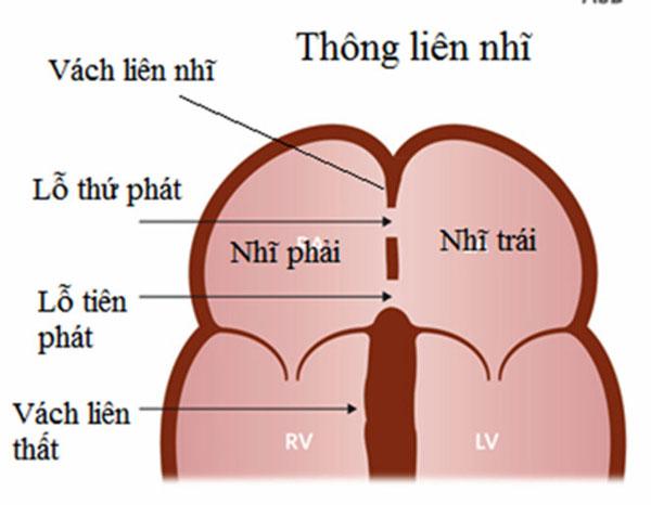 Bệnh tim bẩm sinh TLN, TLT