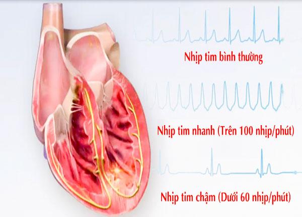 Chia sẻ một số thông tin về bệnh Nhịp nhanh trên Thất