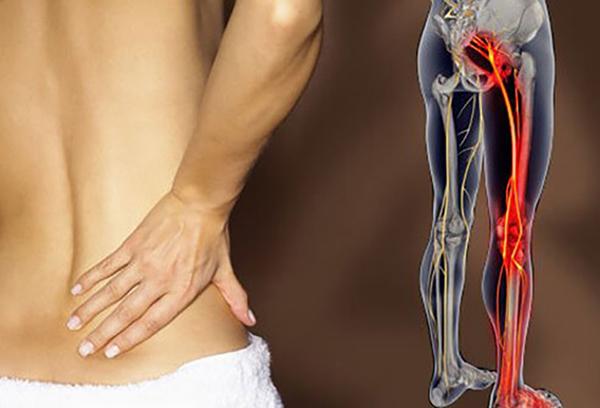 Đau dây thần kinh tọa ảnh hưởng nghiêm trọng đến đời sống của người bệnh