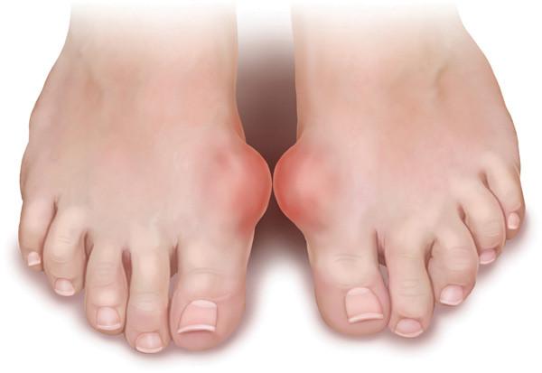Bệnh Gout và những điều bạn cần tìm hiểu