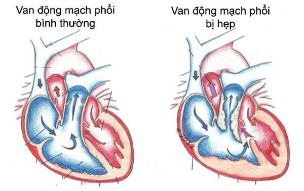 Hình ảnh giải phẫu Hẹp van động mạch phổi