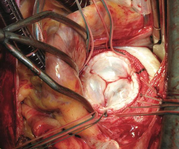 Hình ảnh phẫu thuật van tim