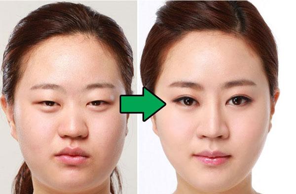 Massage chữa sụp mí mắt bằng động tác nâng cơ mi trên