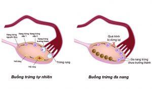 Cách điều trị bệnh đa nang buồng trứng ở phụ nữ