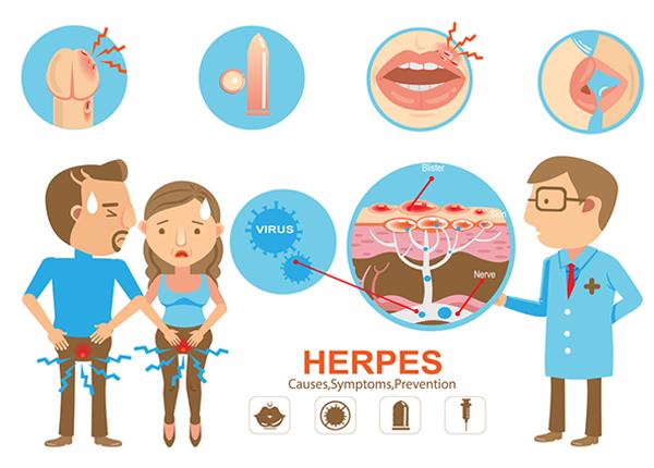 Những điều cần biết về bệnh lậu