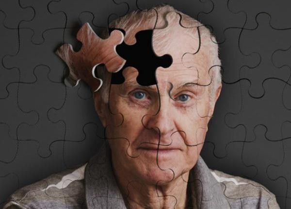 Bệnh Alzheimer là bệnh gì và nguyên nhân do đâu?