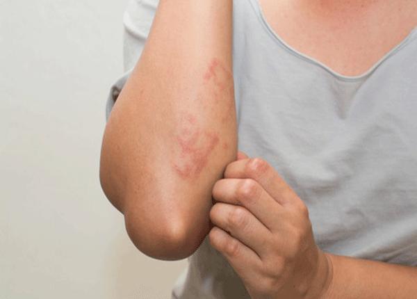 Triệu chứng thường gặp của bệnh phát ban mạn tính là gì?