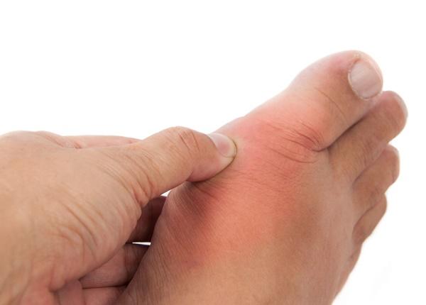 Triệu chứng lâm sàng của bệnh gout