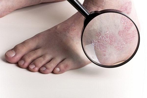Bệnh vảy nến là bệnh chuyển hóa nguy hiểm
