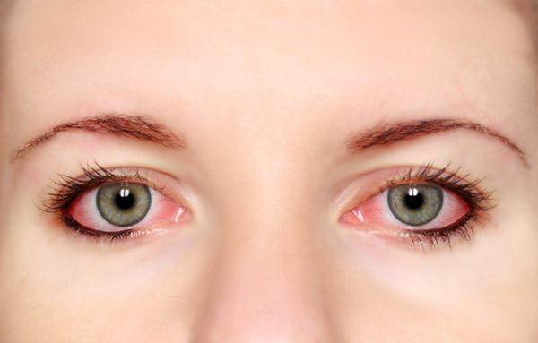 Không nên dụi hoặc sờ vào mắt đã bị nhiễm trùng