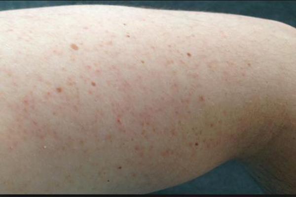 Những điều cần biết về viêm lỗ chân lông