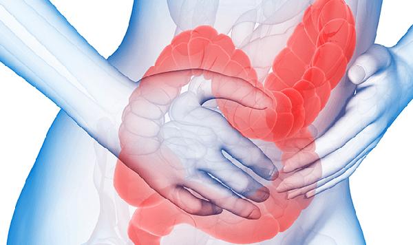 Nguyên nhân và triệu chứng hội chứng ruột kích thích