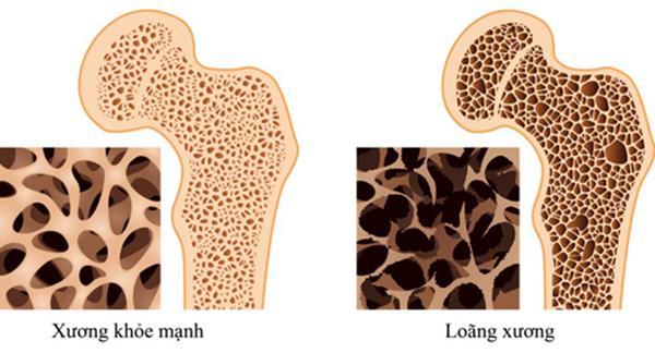 Bổ sung đầy đủ lượng Canxi cho cơ thể giúp bạn ngăn chặn được loãng xương