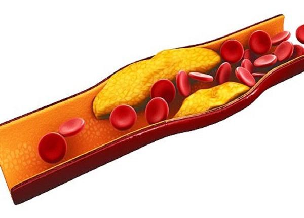 Những thông tin cơ bản về chứng vữa xơ động mạch