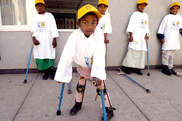 hội chứng sau bại liệt rất đa dạng về triệu chứng