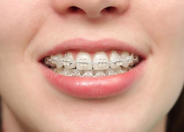 Niềng răng và những chú ý quan trọng không nên bỏ qua