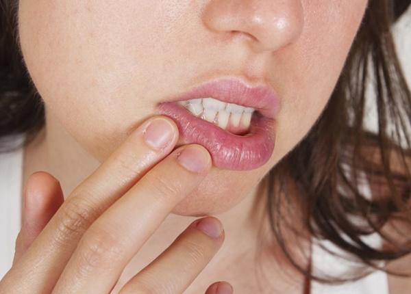 Herpes sinh dục (HSV) là bệnh gì?