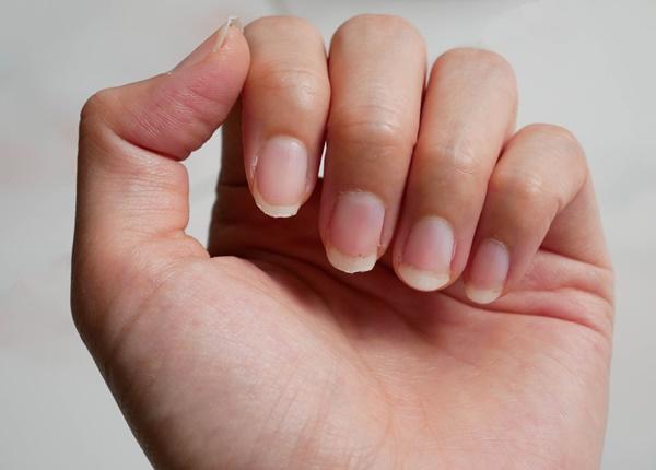 Móng tay có các sọc dọc