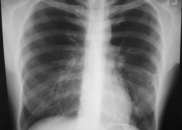 Bệnh Legionnaires và vi khuẩn gây bệnh viêm phổi