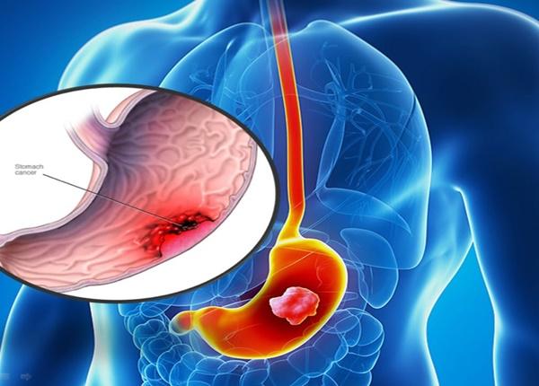 Người có nguy cơ cao bị ung thư dạ dày