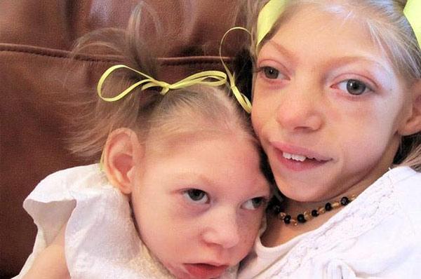 Bệnh nhân Batten bẩm sinh thường là trẻ sơ sinh