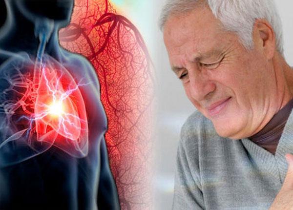 Mỡ máu là nguyên nhân dẫn đến bệnh tim mạch ở người cao tuổi