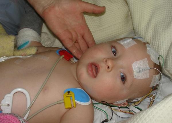 Tìm hiểu nguyên nhân để tránh bại não ở trẻ