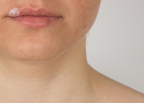 Nguyên nhân gây ra herpes ở miệng