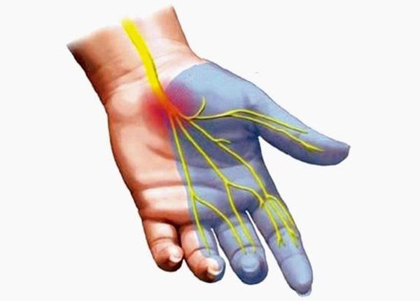 Phương pháp phòng ngừa hội chứng ống cổ tay