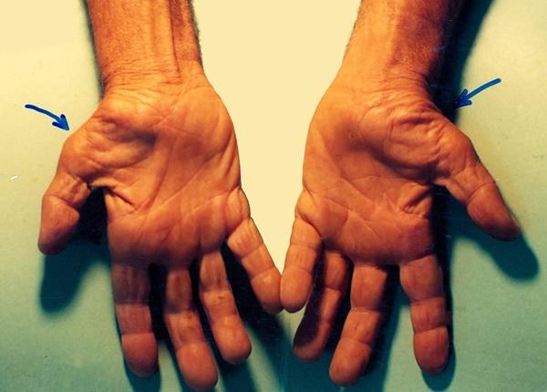 Triệu chứng nhận biết hội chứng ống cổ tay