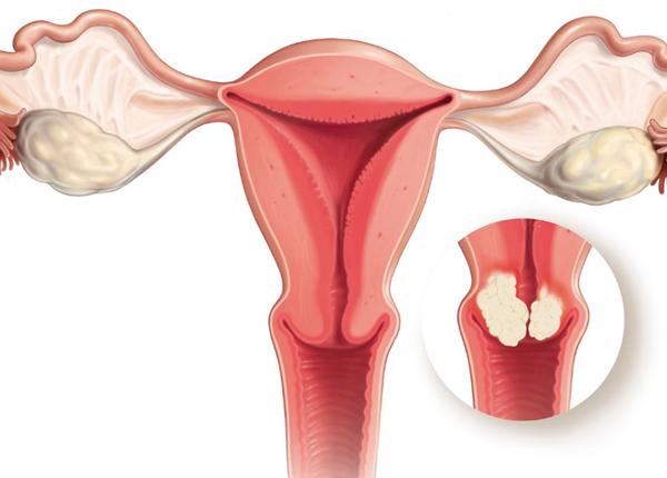 Phòng ngừa ung thư cổ tử cung