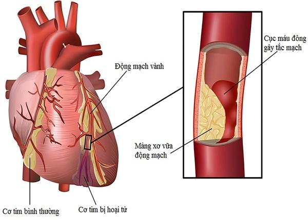 Biến chứng của bệnh động mạch vành