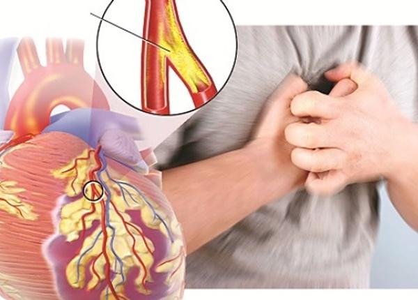 Triệu chứng nhận biết bệnh động mạch vành