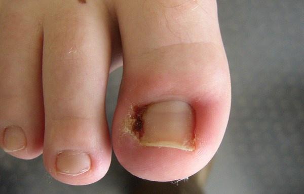Ngâm chân/tay trong nước ấm có pha muối Epsom
