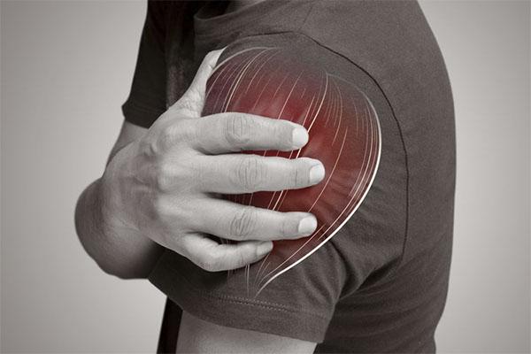 Xử lý vấn đề căng cơ, rách cơ