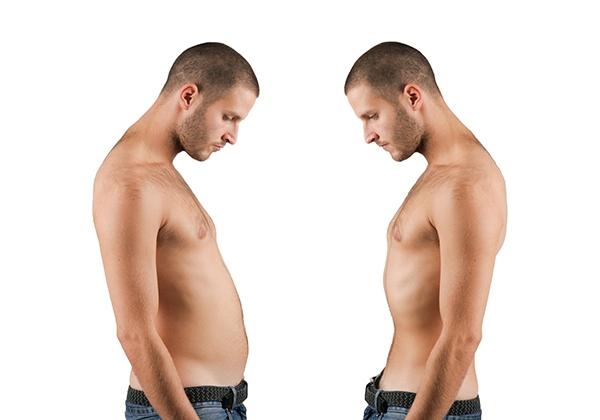 Skinny fat người gầy nhiều mỡ