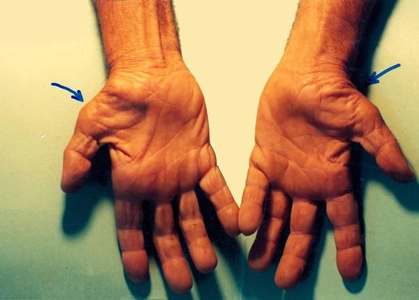 Tìm hiểu về hội chứng ống cổ tay