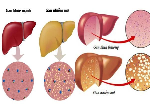 Triệu chứng lâm sàng bệnh gan nhiễm mỡ