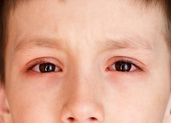 Chăm sóc trẻ bị đau mắt đỏ