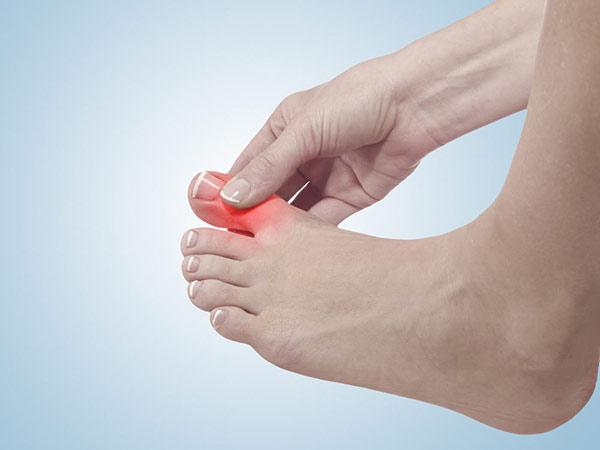 Tăng axit uric máu và các triệu chứng bệnh Gout