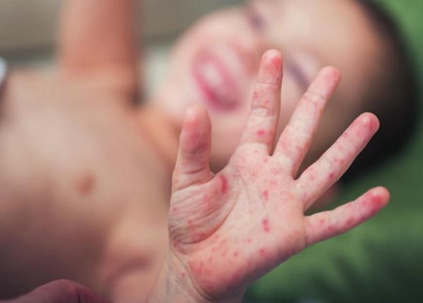 Chăm sóc trẻ bị bệnh tay chân miệng