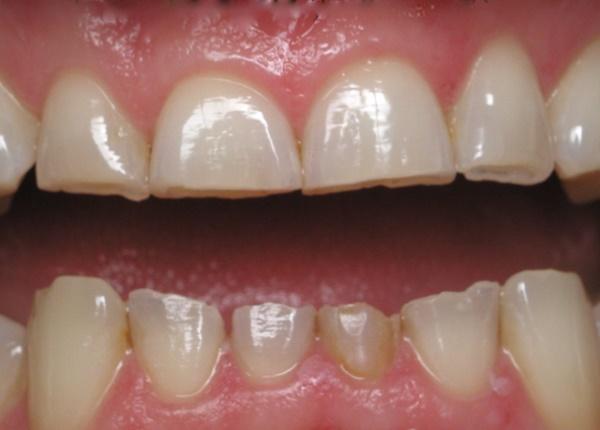 Mòn răng và giải pháp phòng ngừa tình trạng này