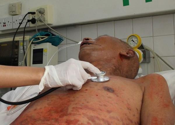 Bệnh nhiễm xoắn khuẩn Leptospira