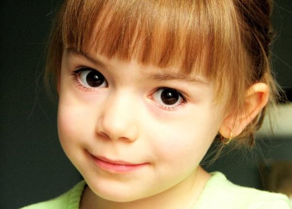 Cách xử lý và chăm sóc trẻ khi bị đau mắt đỏ