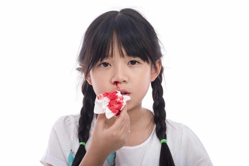 Hướng dẫn xử trí chảy máu mũi cho trẻ tại nhà