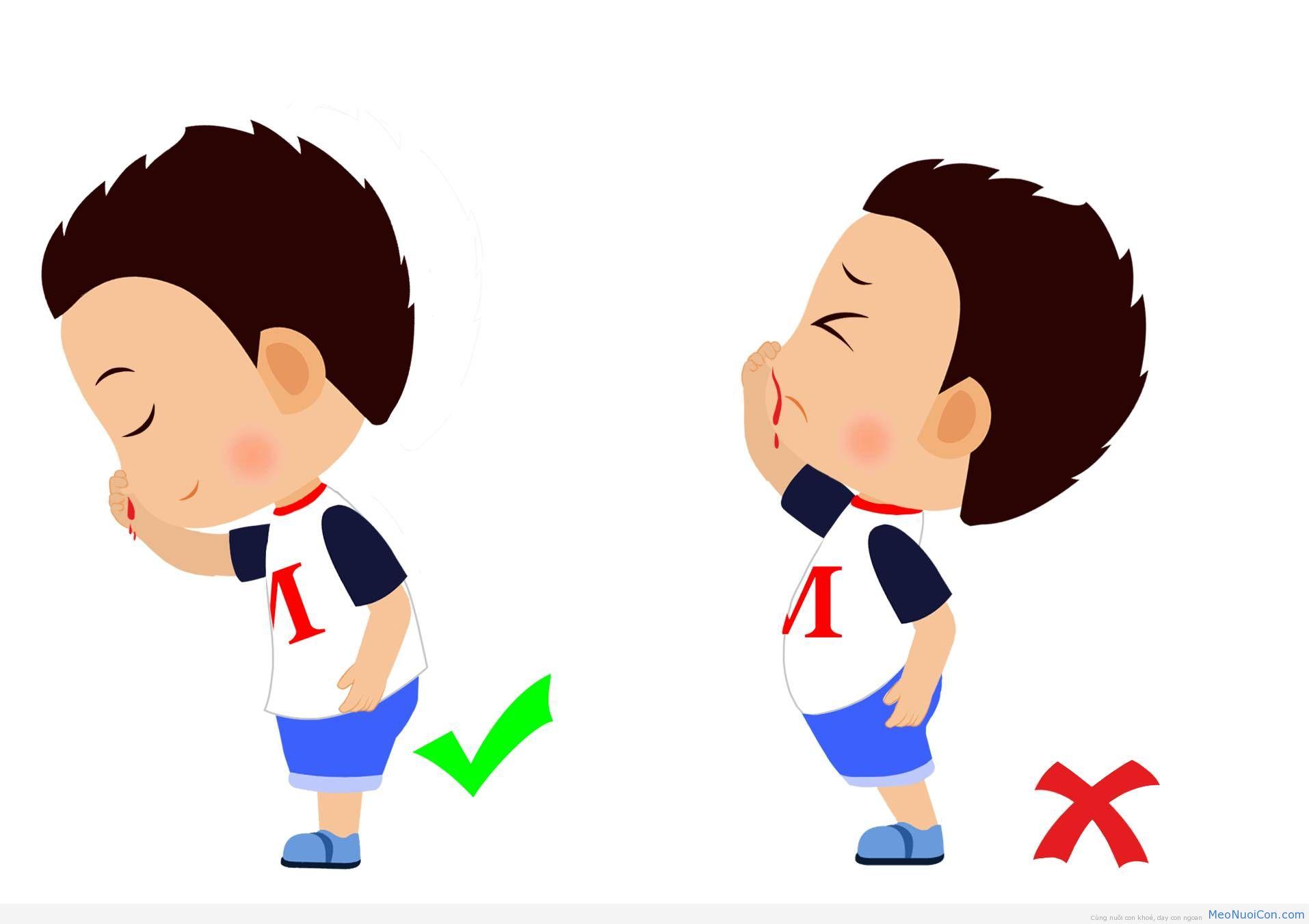 Cách sơ cứu trẻ đúng cách khi bị chảy máu mũi