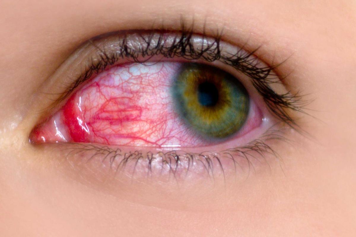Bài thuốc đông y trị đau mắt đỏ hiệu quả