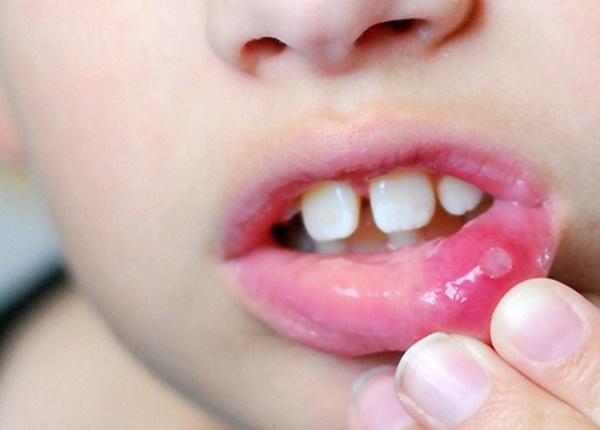 Nguyên nhân và cách phòng tránh nhiệt miệng hiệu quả nhất