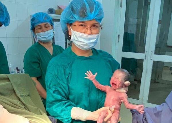 Bác sĩ thực hiện phẫu thuật lấy thai ca sinh 3 cùng trứng hy hữu.