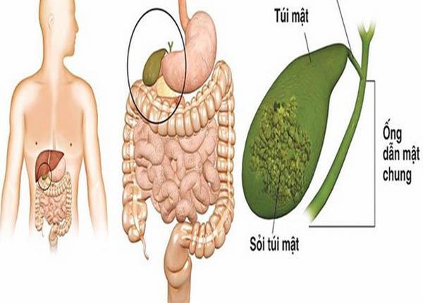 Sỏi mật có hình dạng là một khối cứng tồn tại trong túi mật
